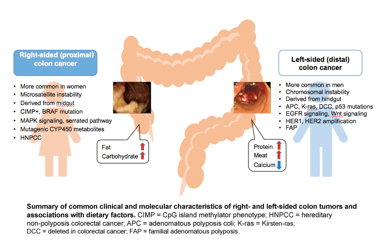 colorectal cancer gender differences)